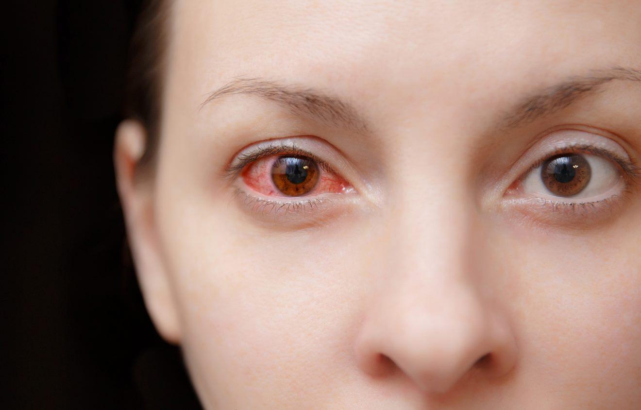 Viêm kết mạc mắt – Giải đáp tất cả các thắc mắc thường gặp